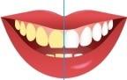 Tandenbleekset hoe te gebruiken handleiding voor wittere tanden