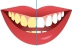 Charcoal hoe te gebruiken handleiding voor wittere tanden