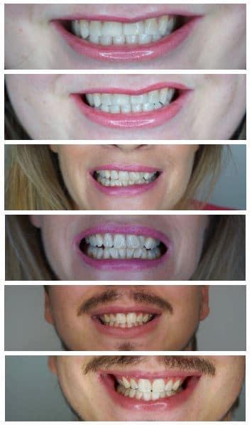 tanden bleken resultaten