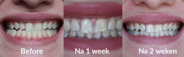 hoe vaak tanden bleken