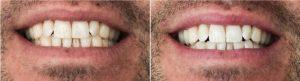 tanden bleken voor en na