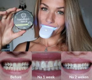 HetfeestjevanIris ervaring tandenbleekset en charcoal