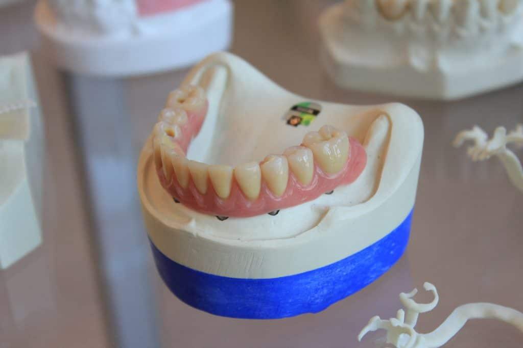 Tanden bleken met kronen of vullingen