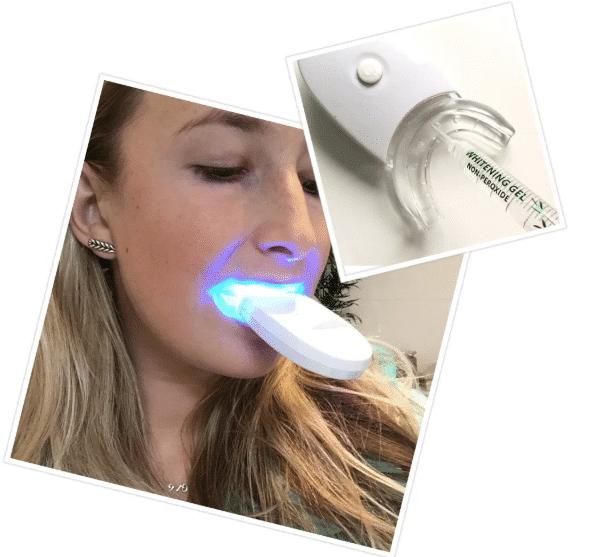 lindsey b. review tandenbleekset