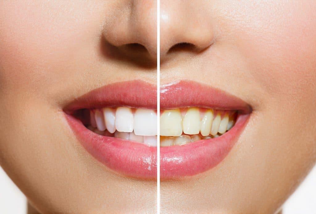 Hoeveel tinten witter je tanden kunnen worden door bleken