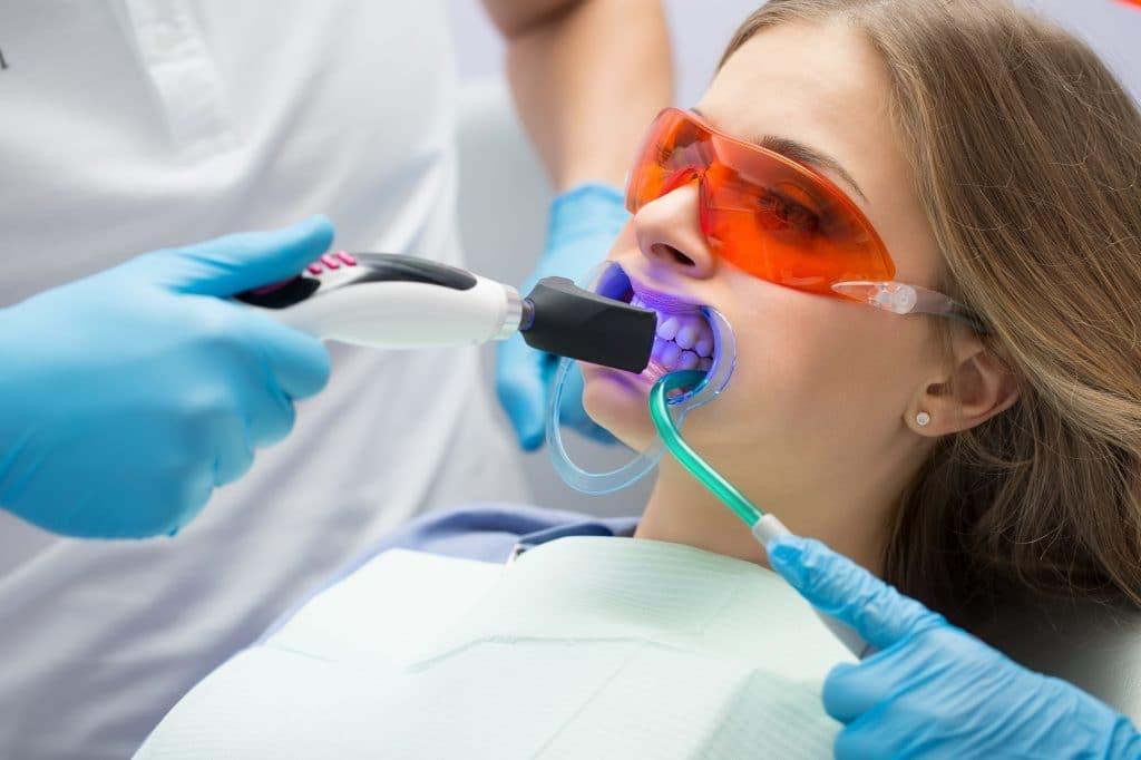 Tanden bleken bij de tandarts is  duur