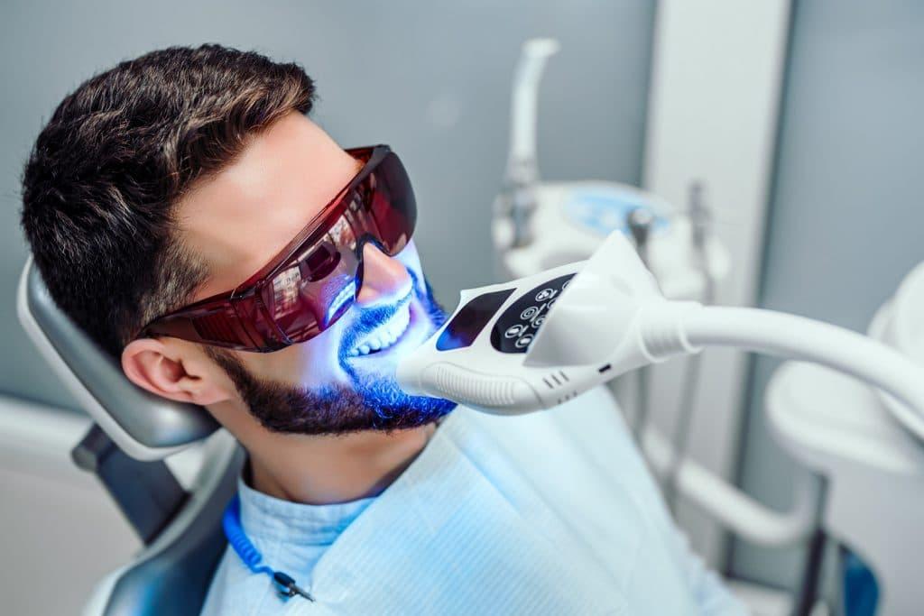 Professioneel je tanden laten bleken