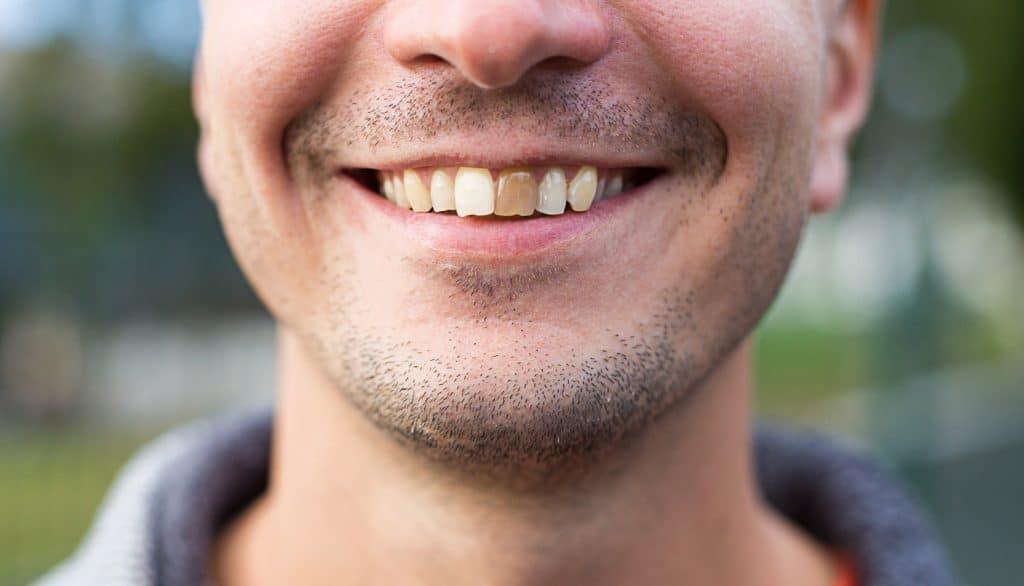 Kun je een dode tand bleken